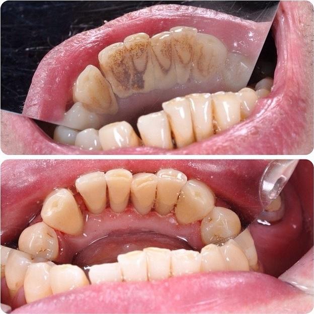 Гигиена полости рта минск